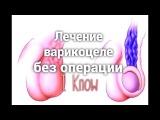 Лечение варикоцеле без операции. Как лечить варикоцеле. Можно ли обойтись без оп...