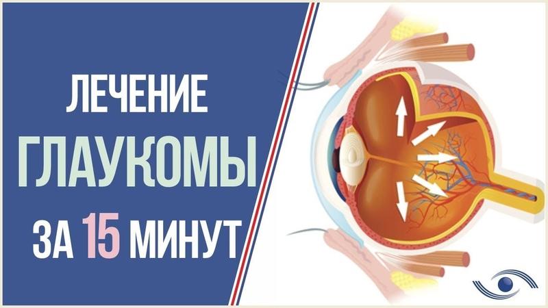 Глаукома. Как лечить? Лечение глаукомы в Новосибирске за 15 мин!
