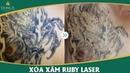 Xóa xăm không để lại sẹo bằng công nghệ xóa xăm Ruby Laser YouTube