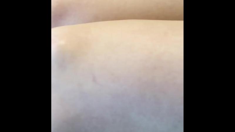 Шугаринг голени