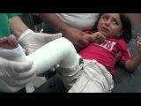 Алеппо. Раненые дети в полевом госпитале 09.16.2012