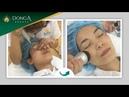 Tận mắt kết quả sau 3 lần điều trị nám chân sâu tại Đông Á