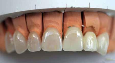 Специалисты стоматологической лаборатории могут проводить свои дни, делая виниры.