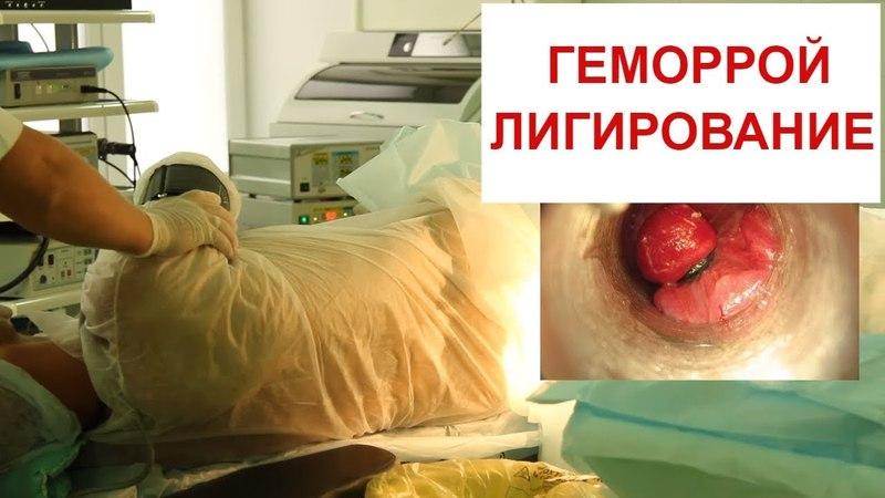 Лигирование геморроидальных узлов латексными кольцами в НАУКЕ . Комбинированное лечение геморроя.