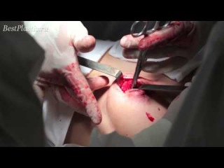 Surgery for penis enlargement