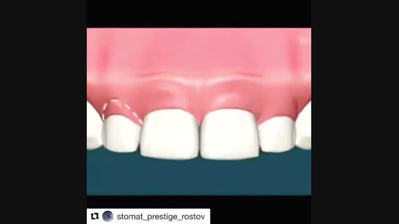 Удаляем лишнюю ткань десен у нас в стоматологической клинике