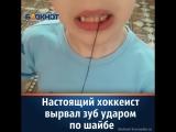 Настоящий хоккеист вырвал зуб ударом по шайбе в Краснодаре