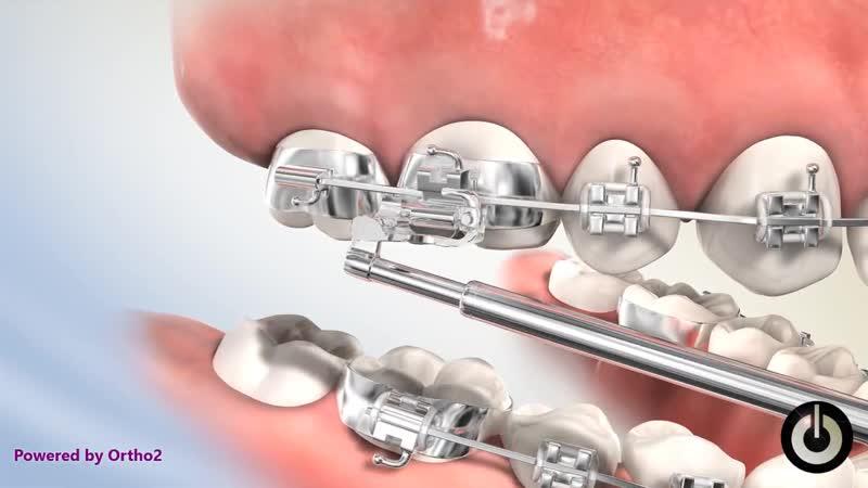 Esprit™ Class II Corrector. Ортодонтия