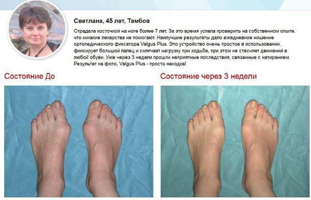 эффективное лечение подагры. как называется косточка на ноге