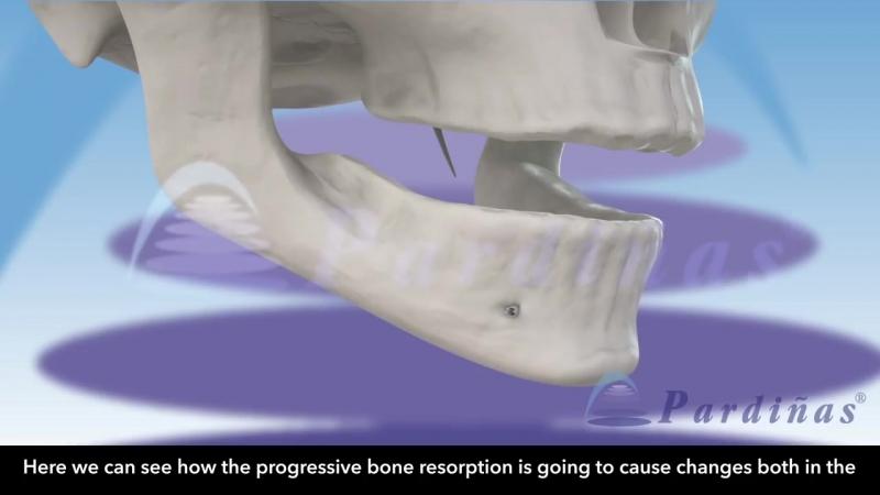 Влияние прогрессирующей резорбции кости на внешний облик и протезирование. Пропедевтика стоматологии.