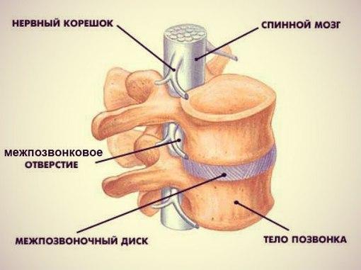 Остеохондроз и лечение