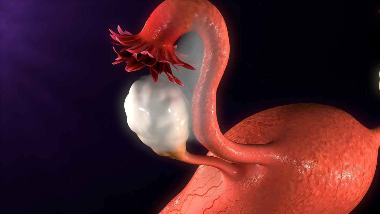 Эндометриоз может вызвать у женщины проблемы с менструальным циклом и плодовитостью.