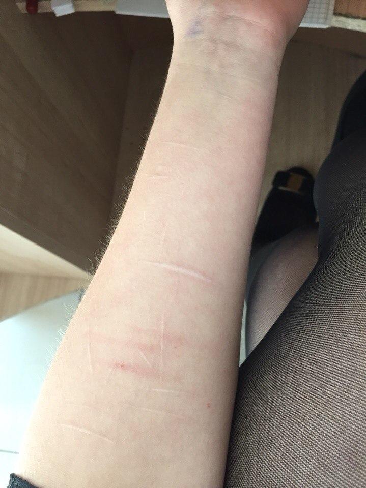 Что делать, чтобы не было шрамов 99