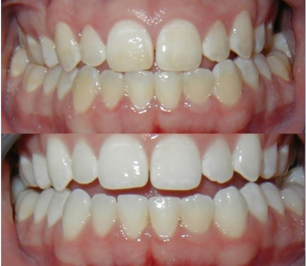 Как отбелить зубы перекисью водорода - отзывы, рецепты 52