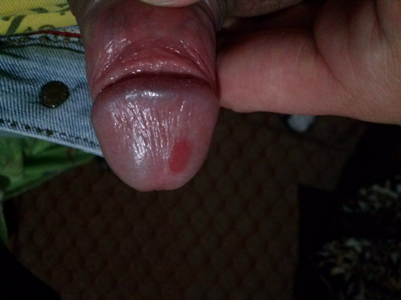 sifilis-foto-polovogo-chlena