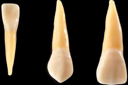 Серебряная амальгама является популярным материалом для пломбирования кариеса