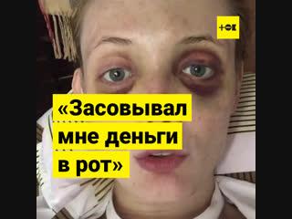 Модель рассказала, как ее избивал бывший бойфренд