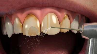 При установке виниров зубы обтащивают на 0,5 мм, снимая эмаль.