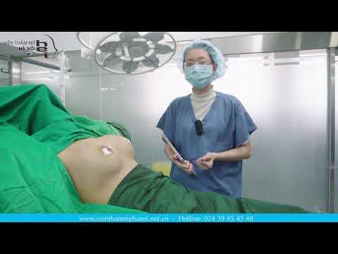 Sở hữu vòng 1 quyến rũ nhanh chóng sau khi thực hiện nâng ngực nội soi