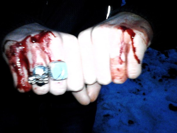 Фото разбитый кулак пацана