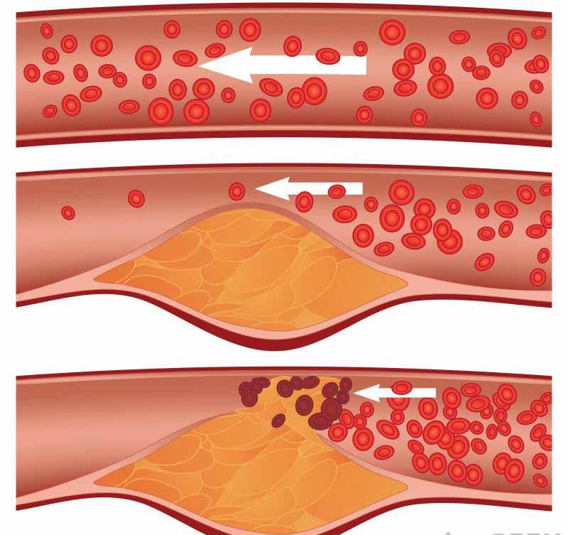 Ишемическая болезнь сердца определяется отложениями налета вдоль стенок коронарных артерий.