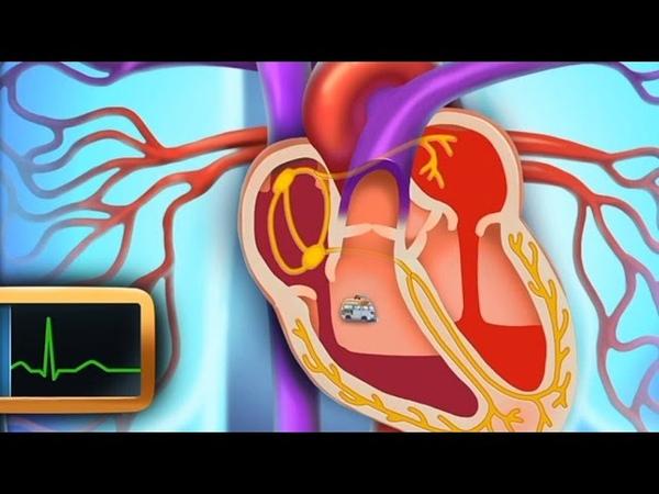 Сердце. Строение сердца - развивающий мультфильм для детей cthlwt. cnhjtybt cthlwf - hfpdbdf.obq vekmnabkmv lkz ltntq