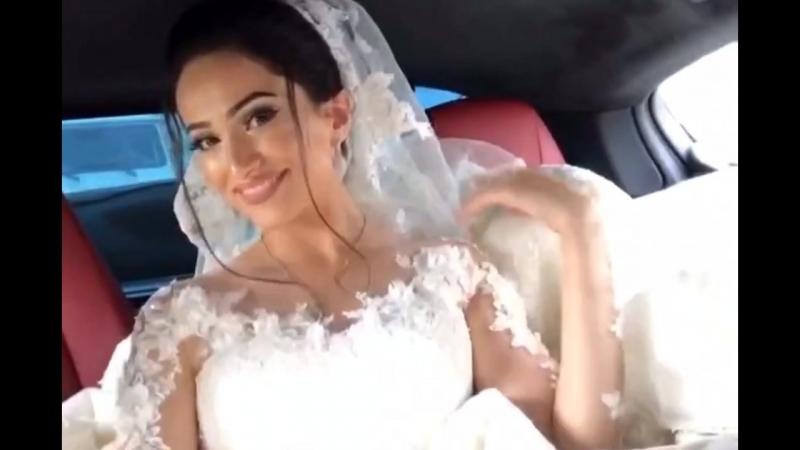 Невеста после курса отбеливающих полосок