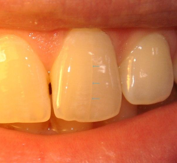 Изоляция Трещины Зуба фото