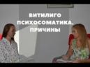 Витилиго психосоматика Каковы причины Консультация психолога Ольги Вологжаниной