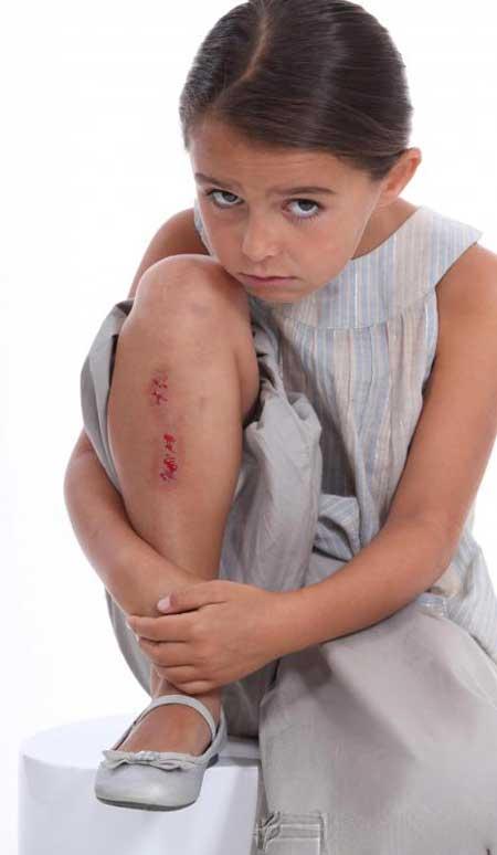 Антисептик может быть применен к порезам и ранам для антибактериальных целей.
