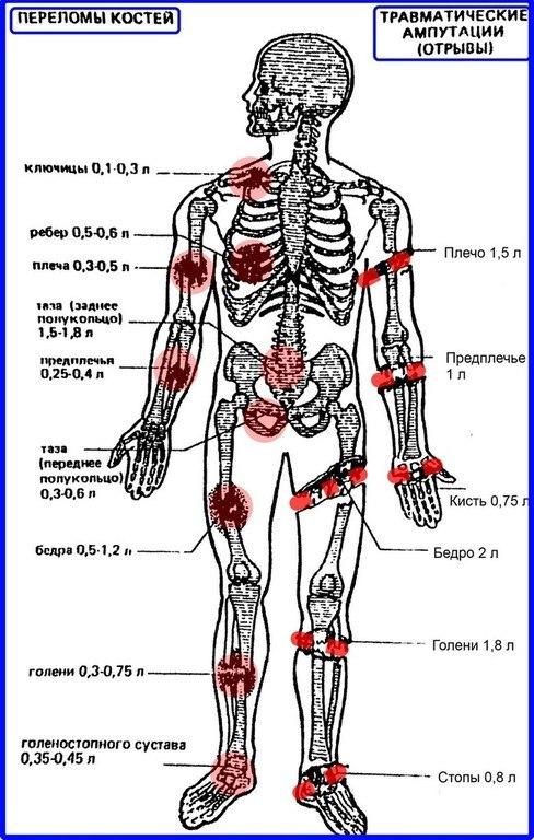 Травматология и ортопедия: Оценка кровопотери