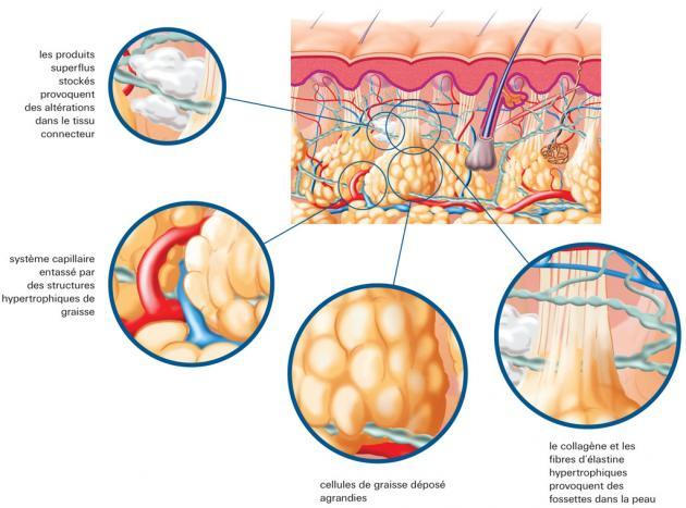 Против целлюлита, Антицеллюлитный крем, Антицеллюлитный массаж