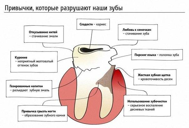 Привычки, которые разрушают наши зубы - Клиника Альбадент