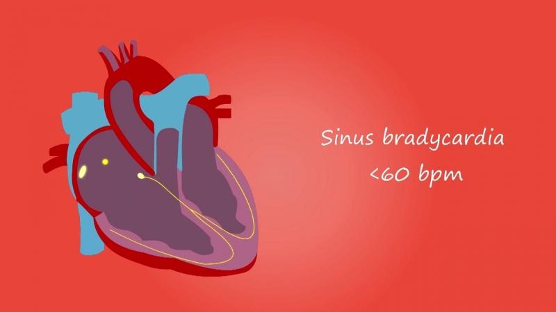 Изменения сердца при нарушениях ритма. Норма, брадикардия, тахикардия.
