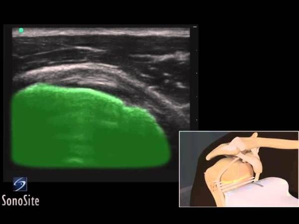 3D-пособие: ультразвуковое исследование сухожилия подлопаточной мышцы
