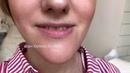 Увеличение губ Врач косметолог Халима Беляева