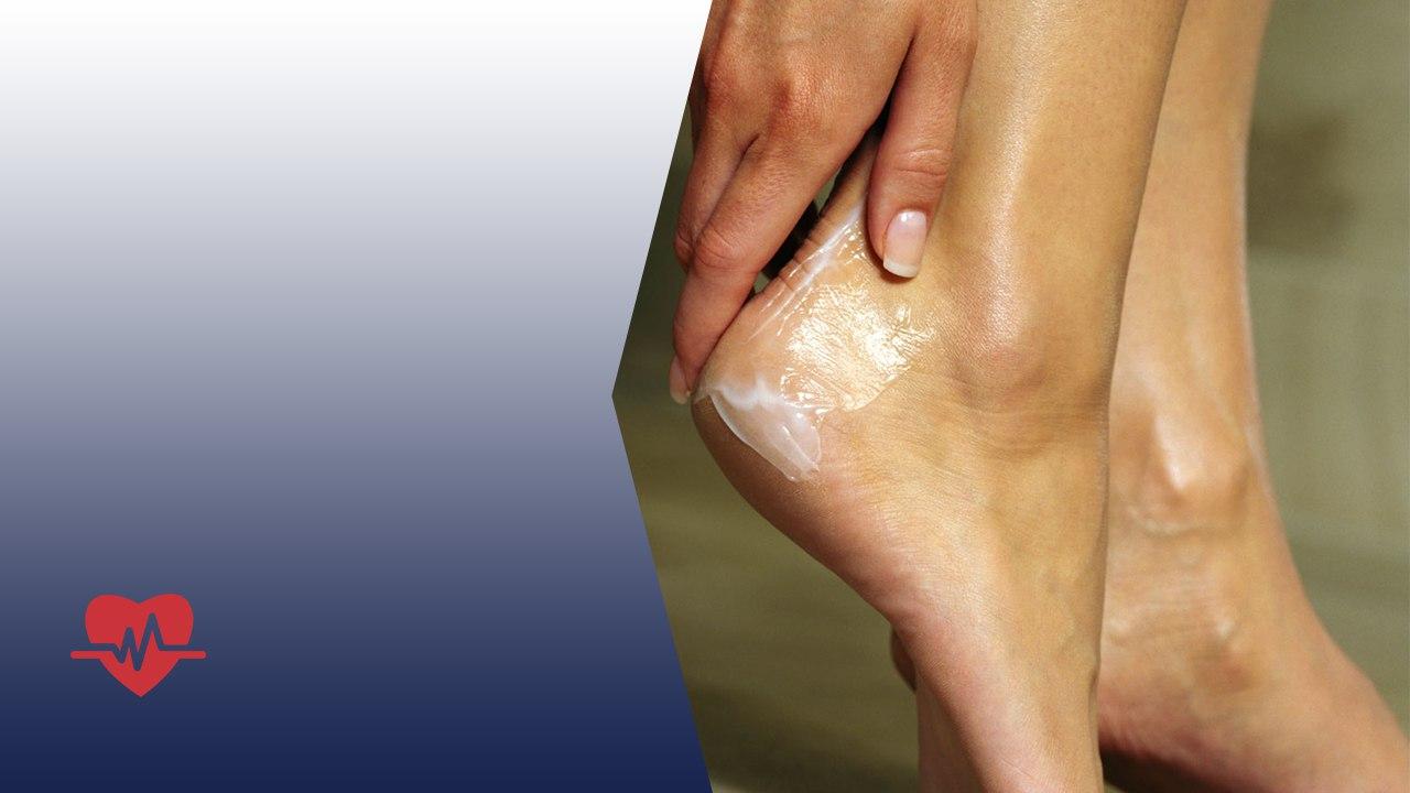 Медикаментозное лечение ног при сахарном диабете