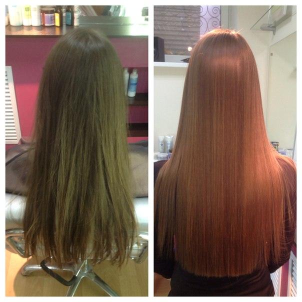 Пересадка волос hfe методом