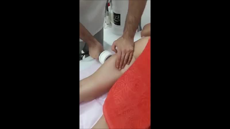 Аппаратный массаж - Ультразвуковая Кавитация