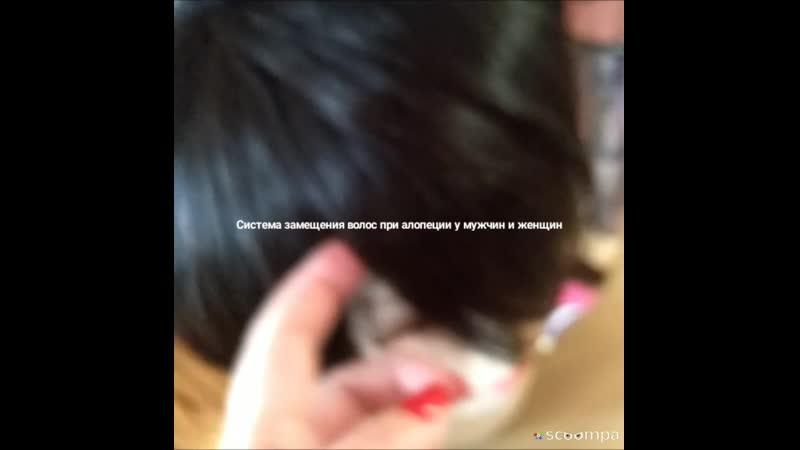 Накладки из натуральных волос с эмитацией кожи головы при алопеции у мужчин и женщин