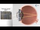 LENTIS Mplus Мультифокальные линзы для коррекции возрастной дальнозоркости