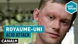 Royaume-Uni Acid attack - L'Effet Papillon CANAL+