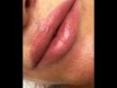 Заживший татуаж губ через месяц после процедуры.