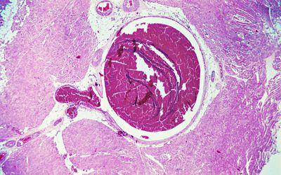 Профилактика тромбов
