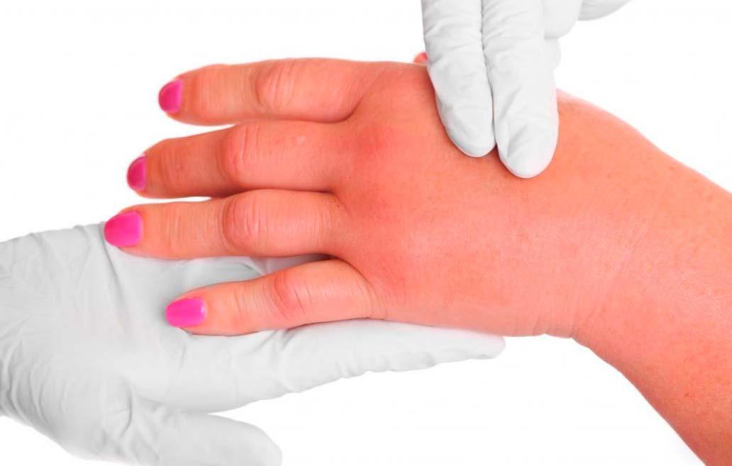 При подагре кисти суставы пальцев или рук становятся воспаленными или опухшими.
