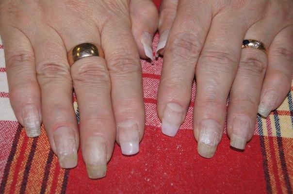 Дизайн ногтей биогелем фото