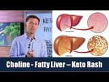 Choline is the Vitamin for a Fatty Liver &amp Can Prevent Keto Rash