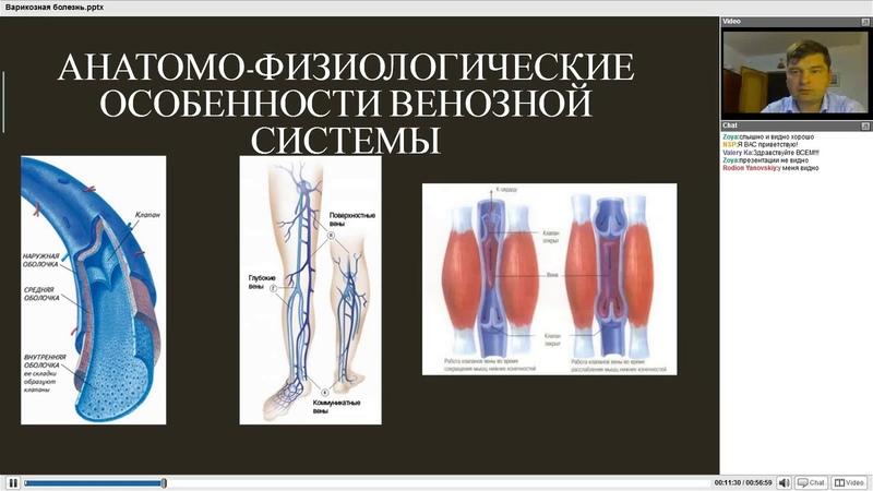 Варикозная болезнь Профилактика и лечение