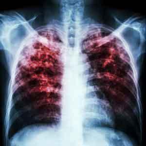 Туберкулез (ТБ) - это потенциально серьезное инфекционное заболевание, которое поражает в основном легкие. Бактерии, вызывающие туберкулез, распространяются из ...