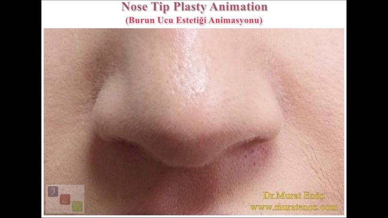 Burun Ucu Estetiği Animasyonu Nose Tip Plasty Animation